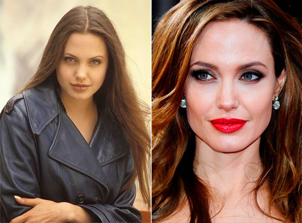 Bichectomia, o segredo dos rostos esbeltos das modelos e celebridades