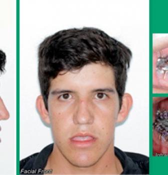 Caso de mordida aberta e atresia maxilar