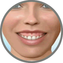 Face Longa, sorriso gengival