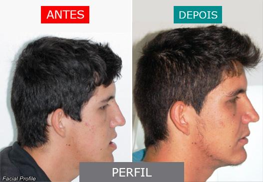 caso 7 - perfil