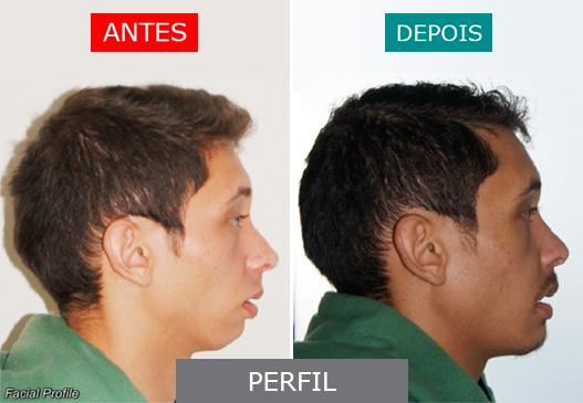 caso 10 - perfil