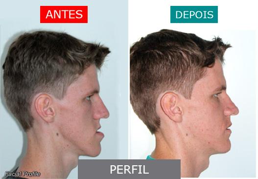 caso 12 - perfil