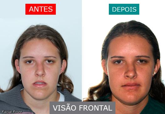 caso 06 - visão frontal