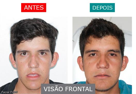 caso 7 - visão frontal