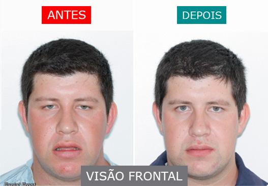 caso 8 - visão frontal