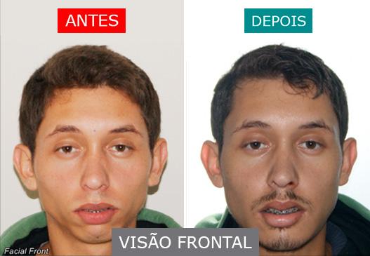 caso 10 - visão frontal