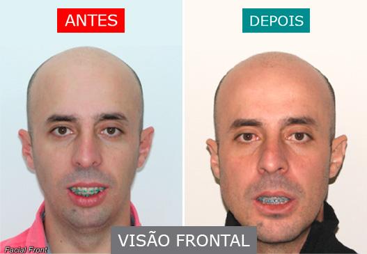 caso 13 - visão frontal